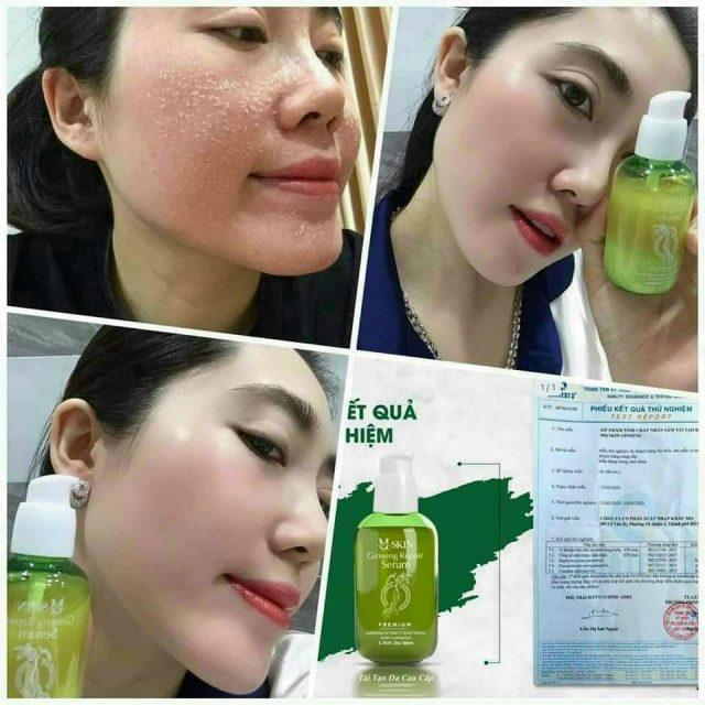 Serum Thay Da MQ Skin - my-pham-mq-skin - Shop bán mỹ phẩm